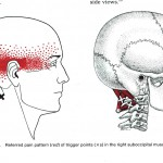 Triggerpunkt, m suboccipitale